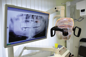Digital Dental X-Ray